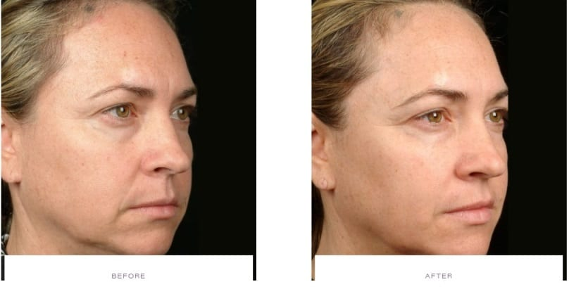 Thermage Face Before and After