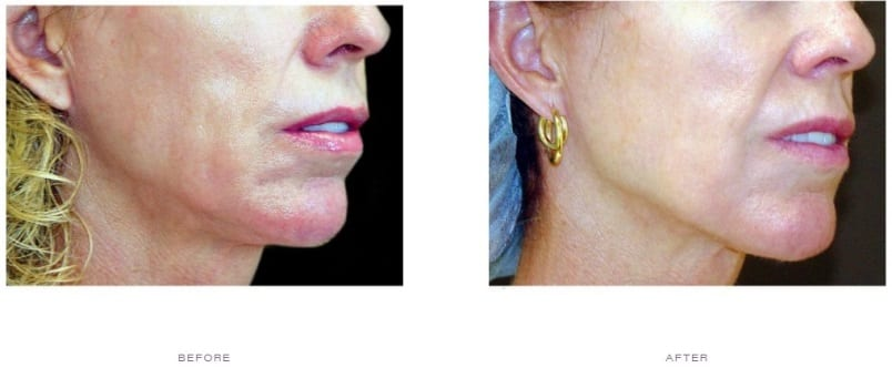 Thermage Neck Before and After