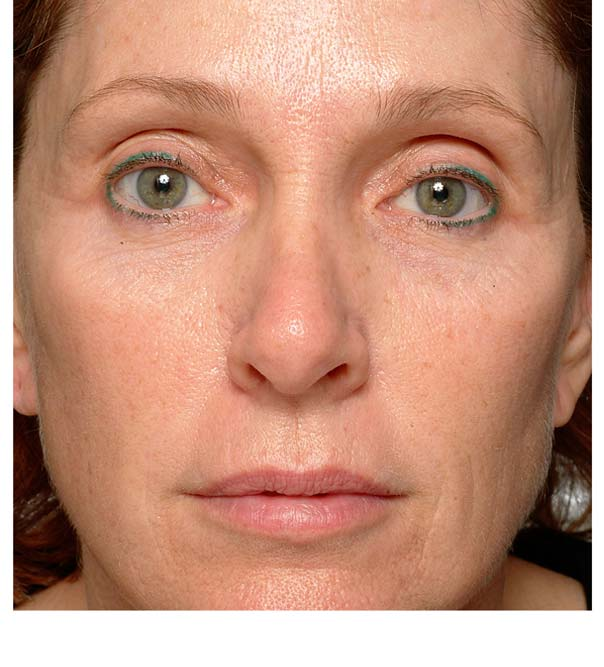 A close up of a lady who has had thermage treatment on her eyes