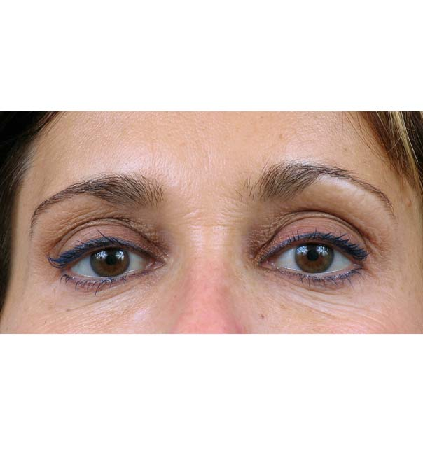 A close up of eyes following thermage treatment