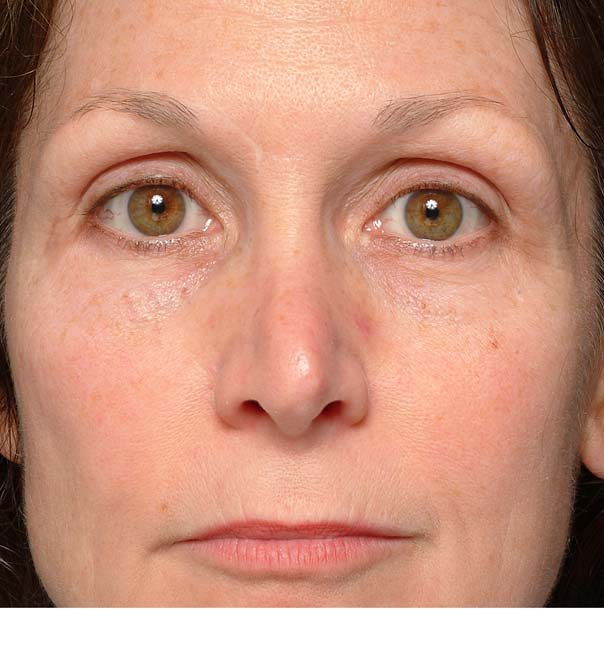 A lady after having thermage treatment on her eyes