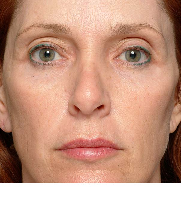 A before image of a lady about to have thermage treatment on her eyes