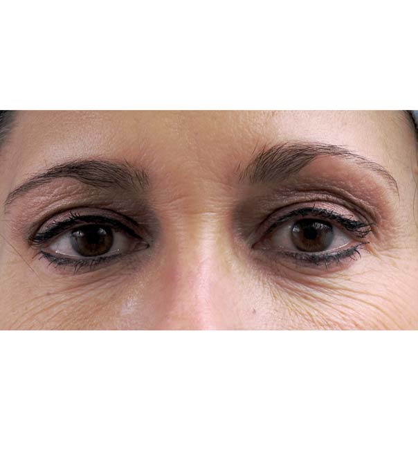 A close up of eyes before thermage treatment