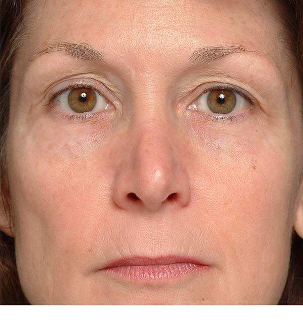 A lady before having thermage treatment on her eyes