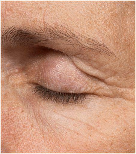 thermage flx eyes wrinkles before