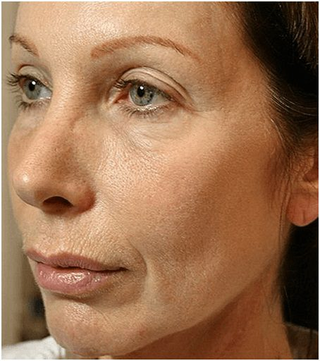 thermage flx face after