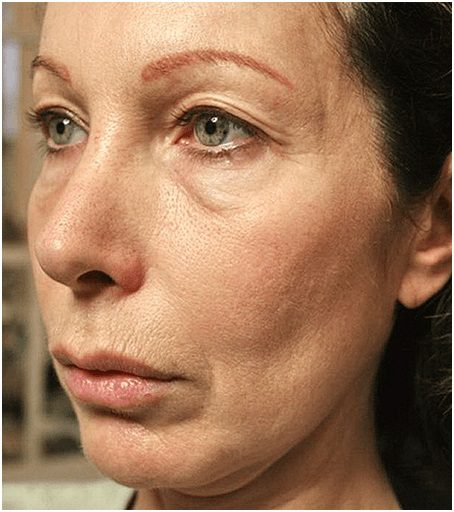 thermage flx face before