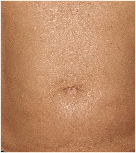 thermage flx wrinkle tummy after