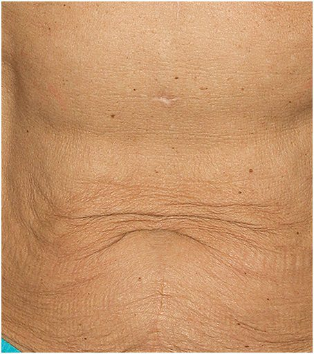 thermage flx wrinkle tummy before