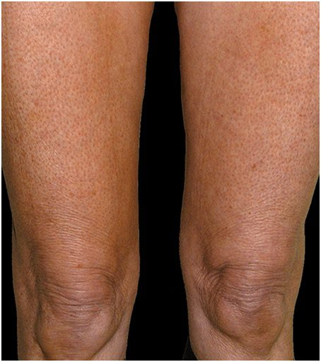 thermage flx wrinkly legs after