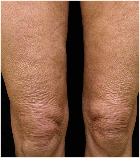 thermage flx wrinkly legs before