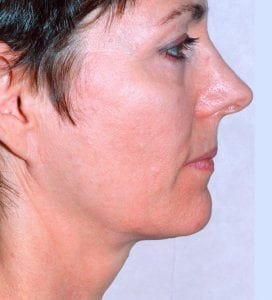 thermage skin tightening treatment after