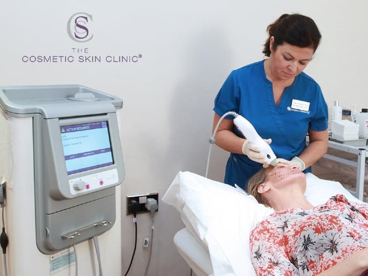 Thermage skin tightening Treatment Taking Place
