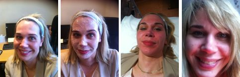 Katherine of TreatmentAdvisor.com reviews Clear+Brilliant at The Cosmetic Skin Clinic