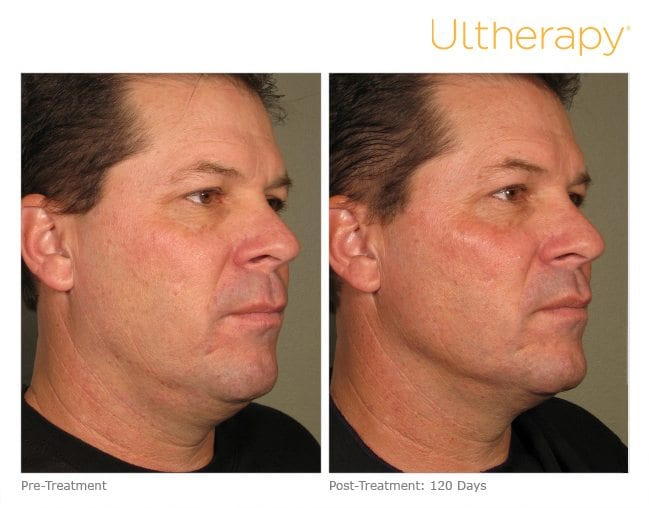 Ultherapy Before and After Full Face