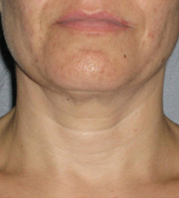 The skin of the neck after skin lifting and tightening