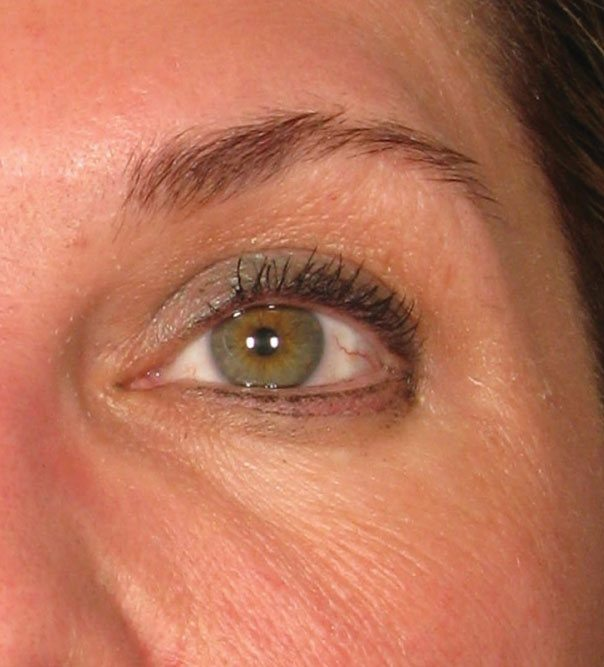 A close up of an eye after a brow lift