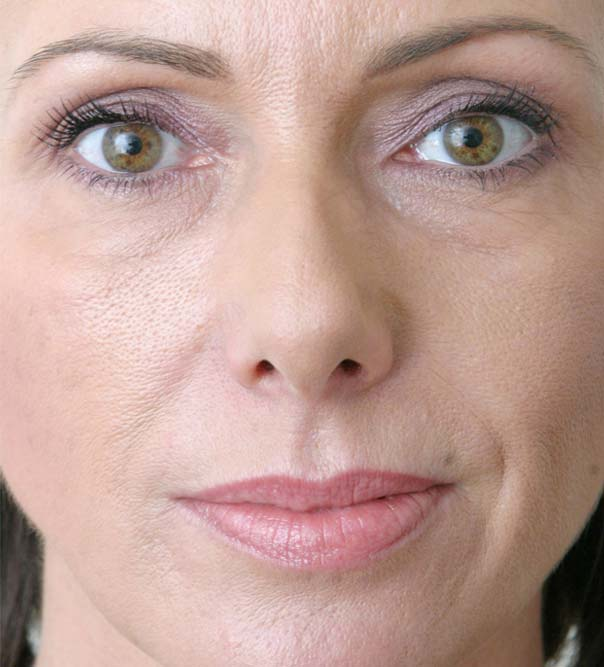 A close up of a lady following Restylane treatment to the lower face and lips