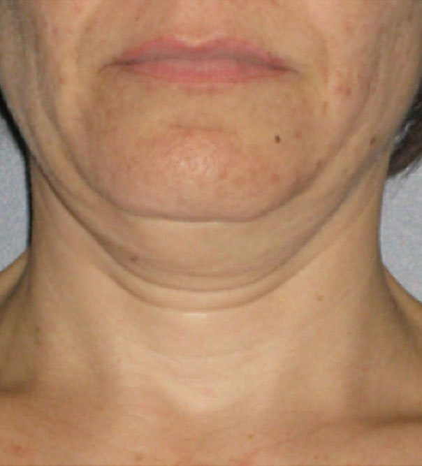 Saggy skin on the neck before having treatment