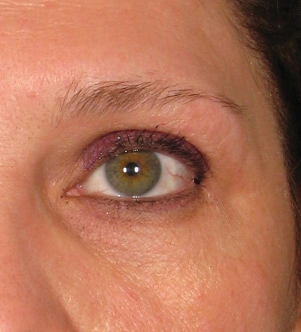 A close up of a lady's eye before having a brow lift