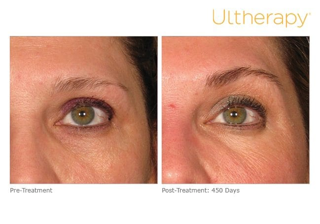 Ultherapy Before and After Brows