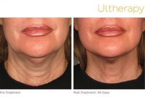 Ultherapy Before and After Lips