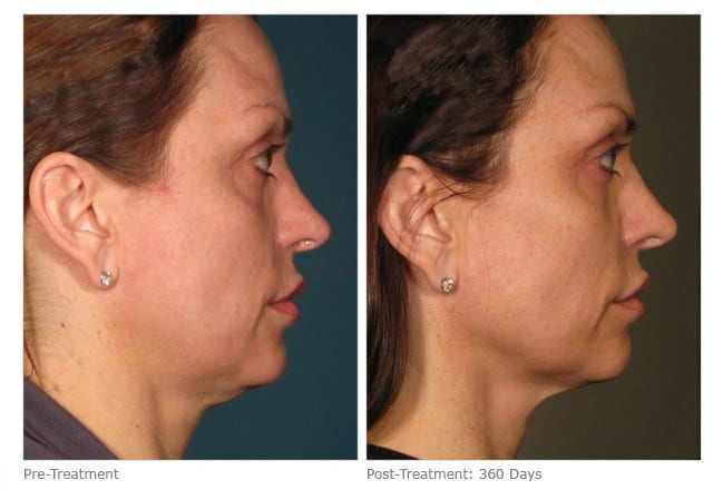 Ultherapy Cheeks Before and After