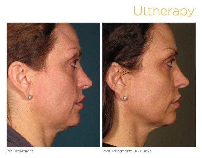 Ultherapy Facelift Before and After