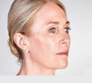ultherapy skin tightening treatment after