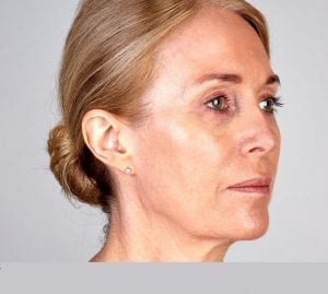 ultherapy skin tightening treatment before