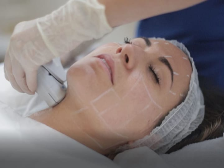 Ultherapy treatment performed on patient