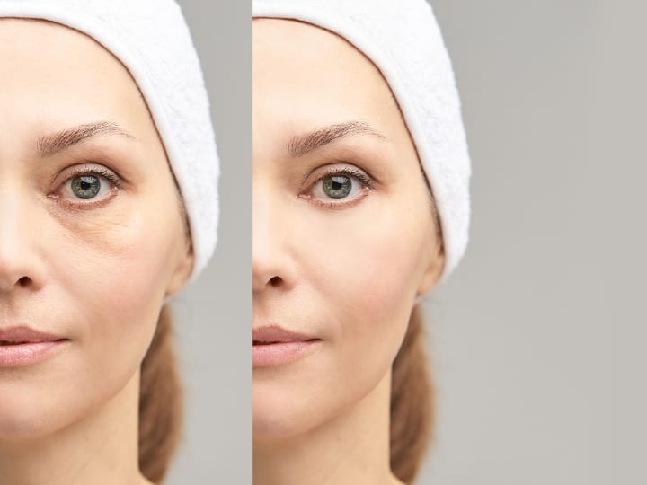 Thermage V Ultherapy Results