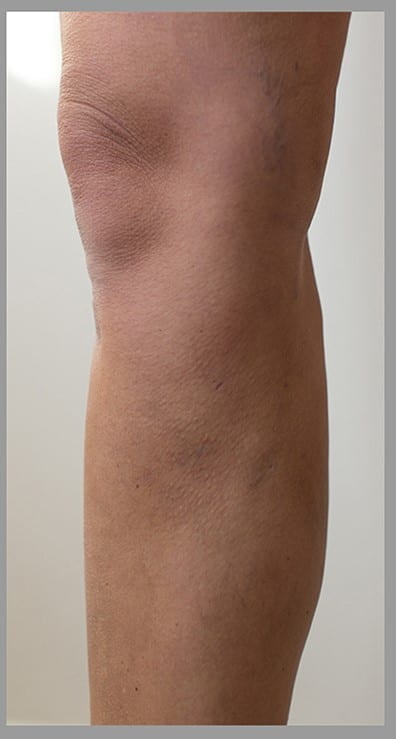 Varicose veins removal after