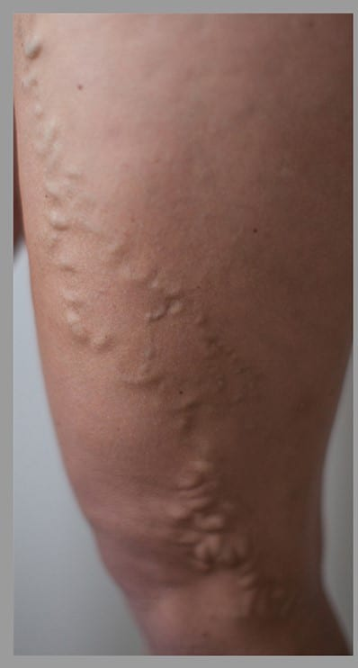 Varicose veins before photo
