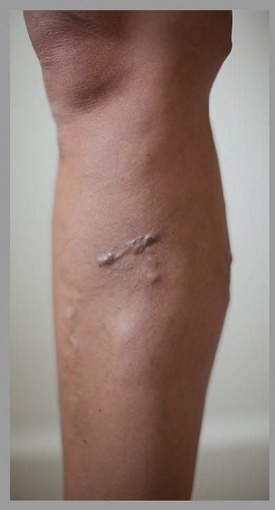 Varicose veins removal before